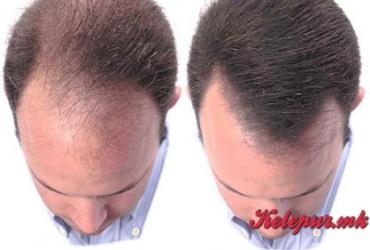 """50% попуст на ласерски третман за обновување на коса за мажи и жени во """"Derma Lux"""" во вредност од 1000ден. за само 499ден."""